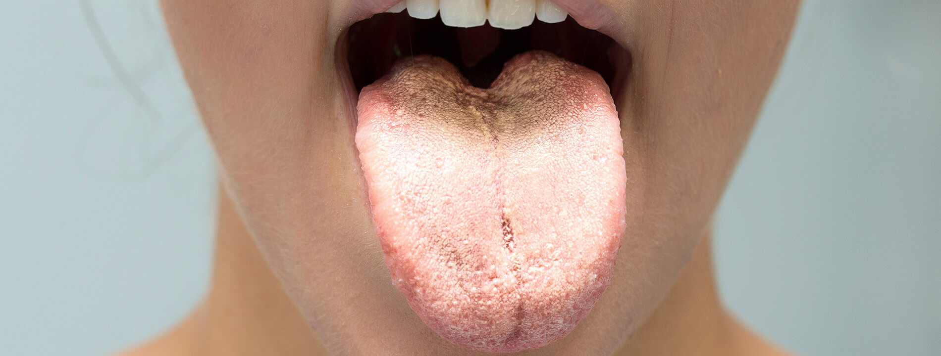 Candidose Pilzerkrankungen